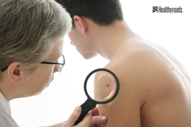 Skin Cancer Self Exam 5-21-2014